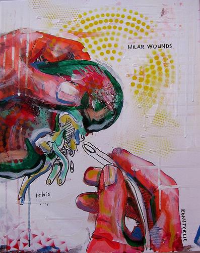 Hilar Wounds
